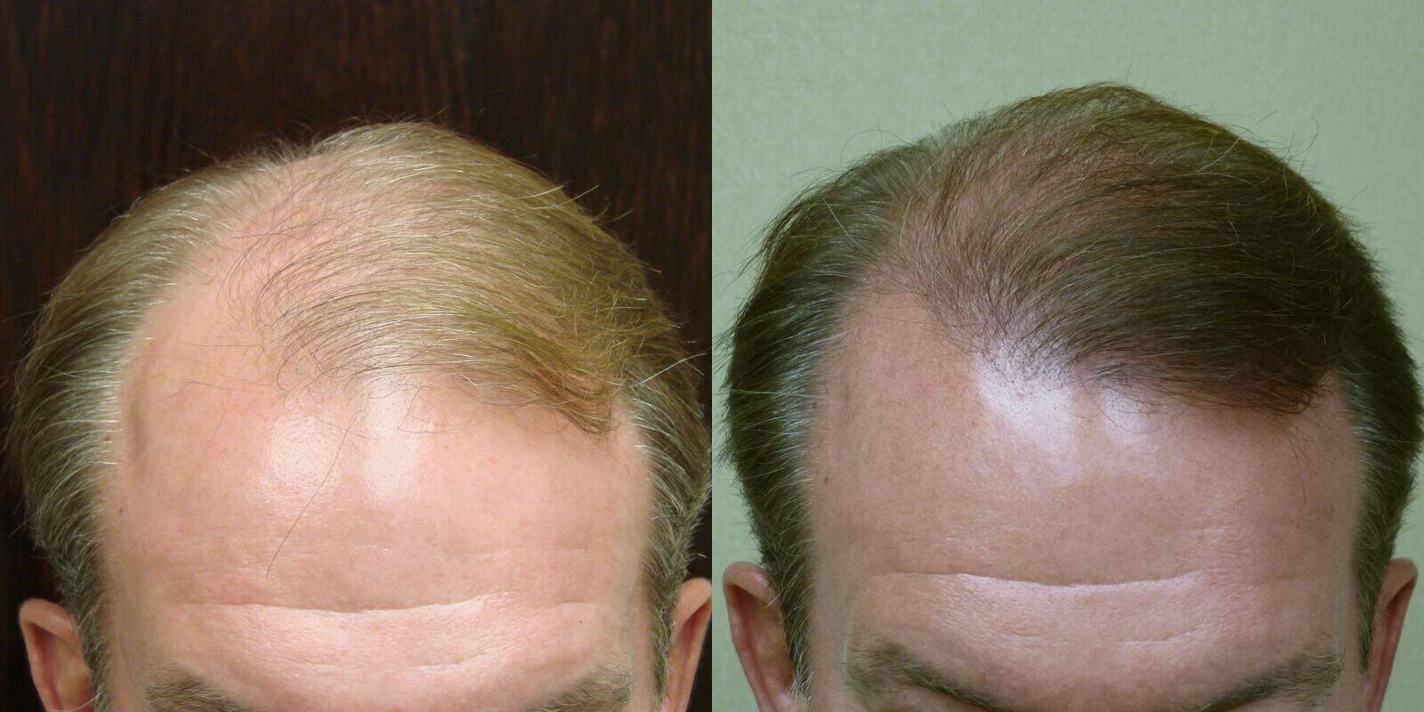 Neograft 58 years old 2,500 grafts before and 1 1/2 years after