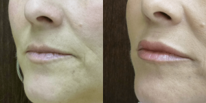 Upper and lower Lip Augmentation 49 year old 1cc Restylane