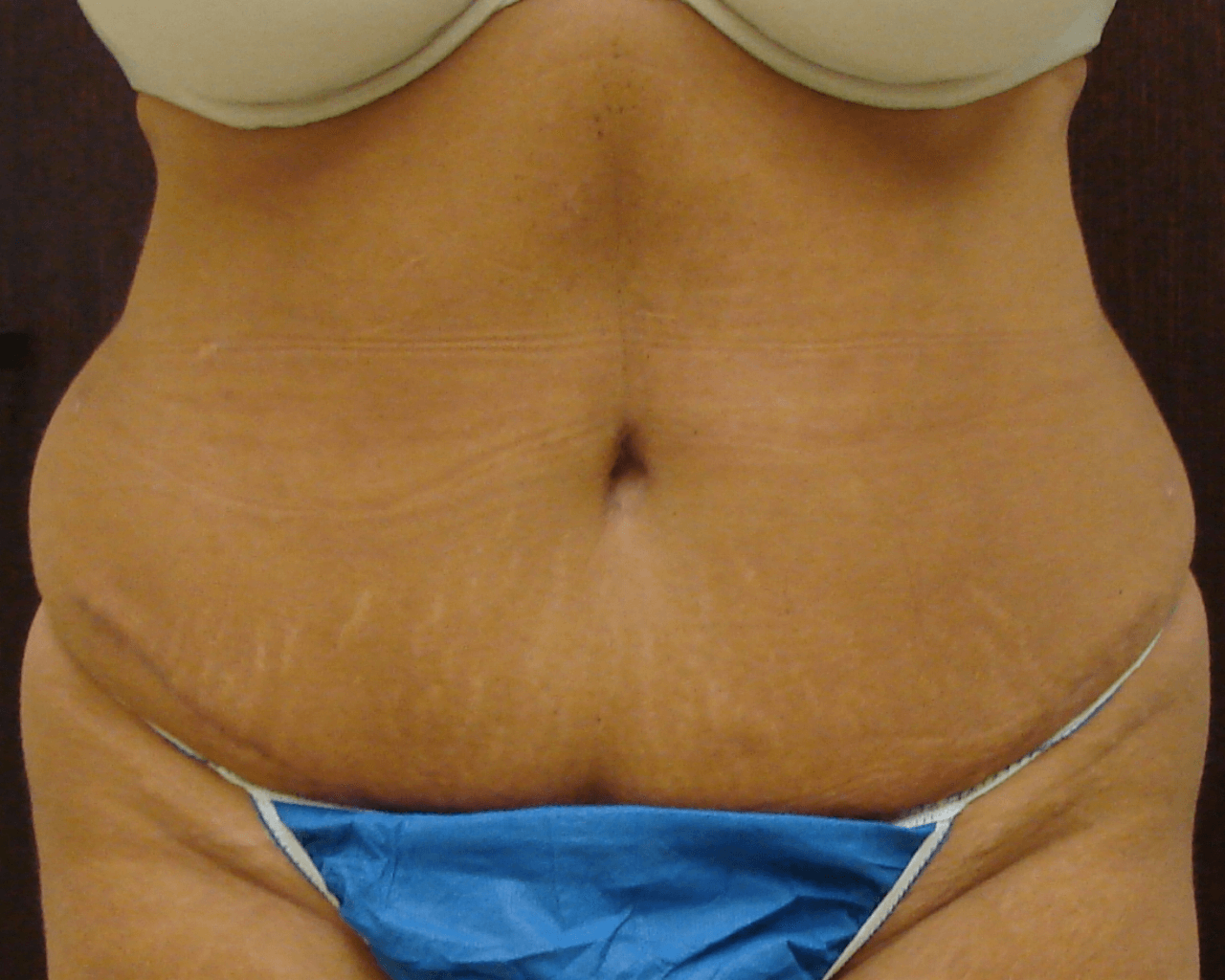 47 year old Abdominoplasty with diastasis repair, and Liposuction contouring before and 4 months after