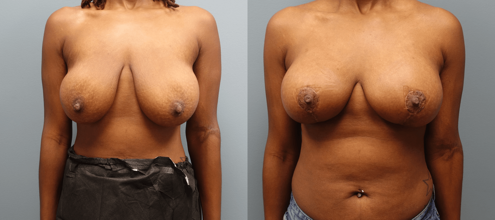 Auto Augmentation can serve as a Breast Lift and Augmentation without the scars of a traditional lift