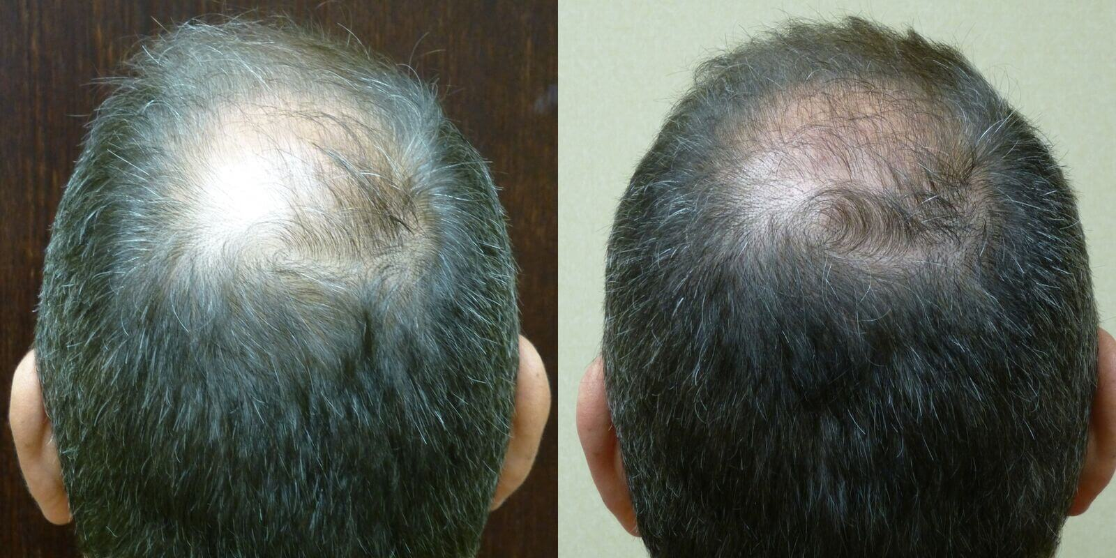 Neograft 43 year old 2,300 grafts to Hairline & crown before and 6 months after