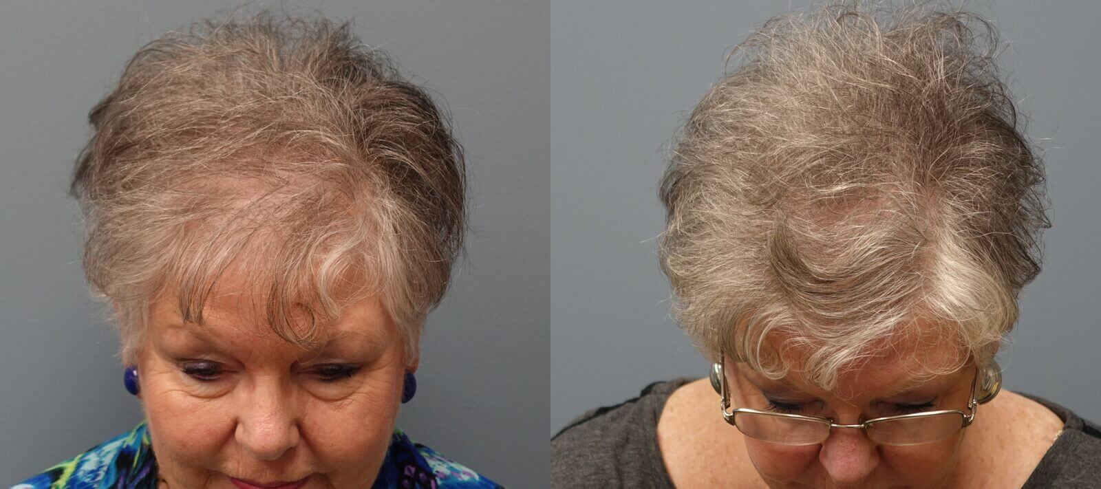 Hair transplant with Neograft 66 year old 1,325 grafts Before and 11 months after