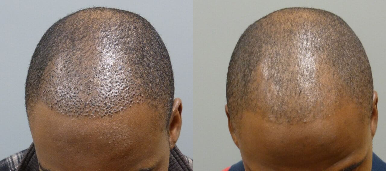 This is an example of a neograft patient, the first set show his donor site and his before picture, the second set shows him 11 days after and then at 4 months after