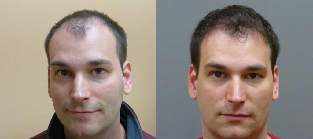 Neograft hair transplant 32 year old 2,000 grafts before and 7 months post-op