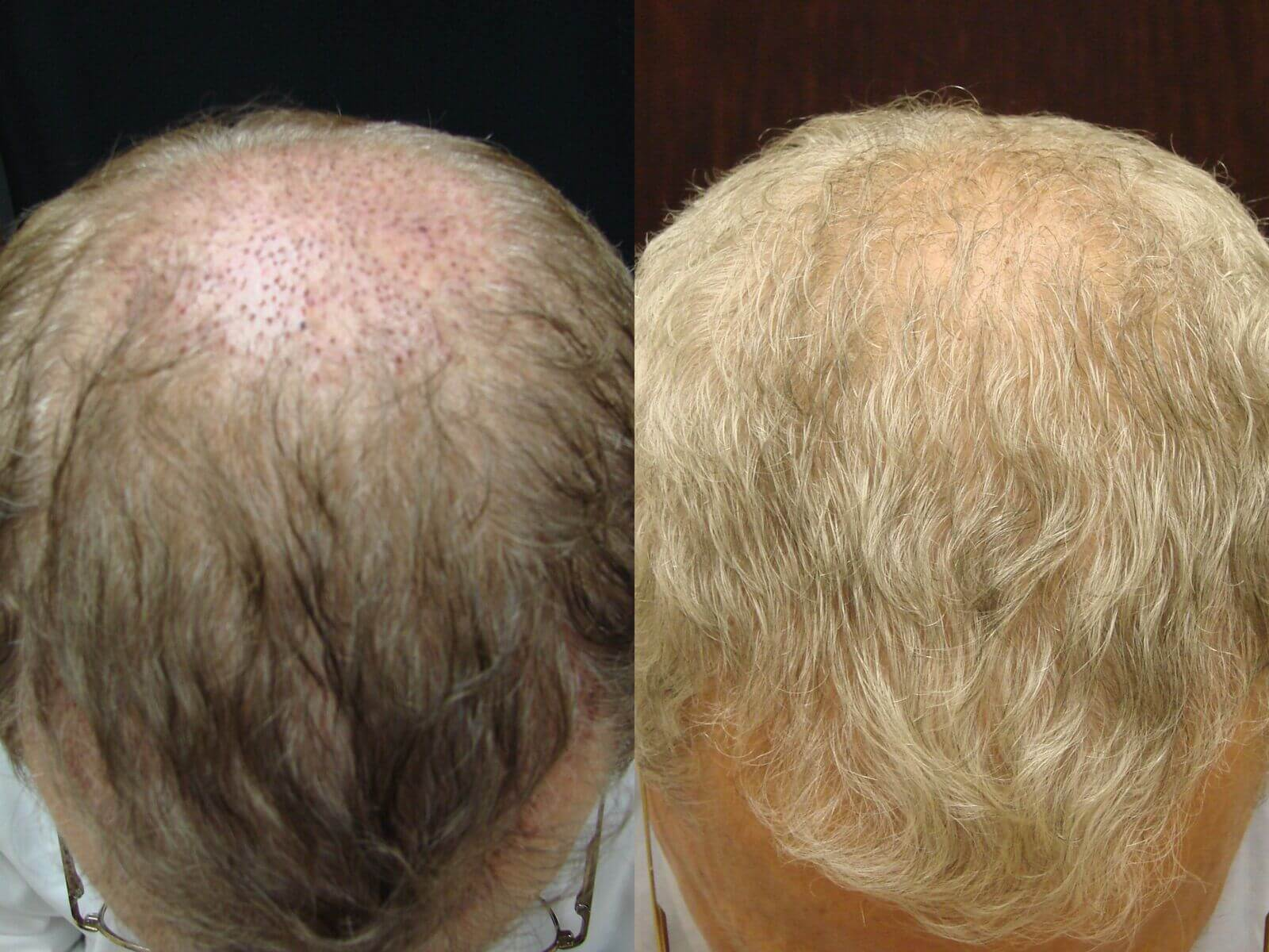 70 year old, 1,000 grafts, before and 8 months after
