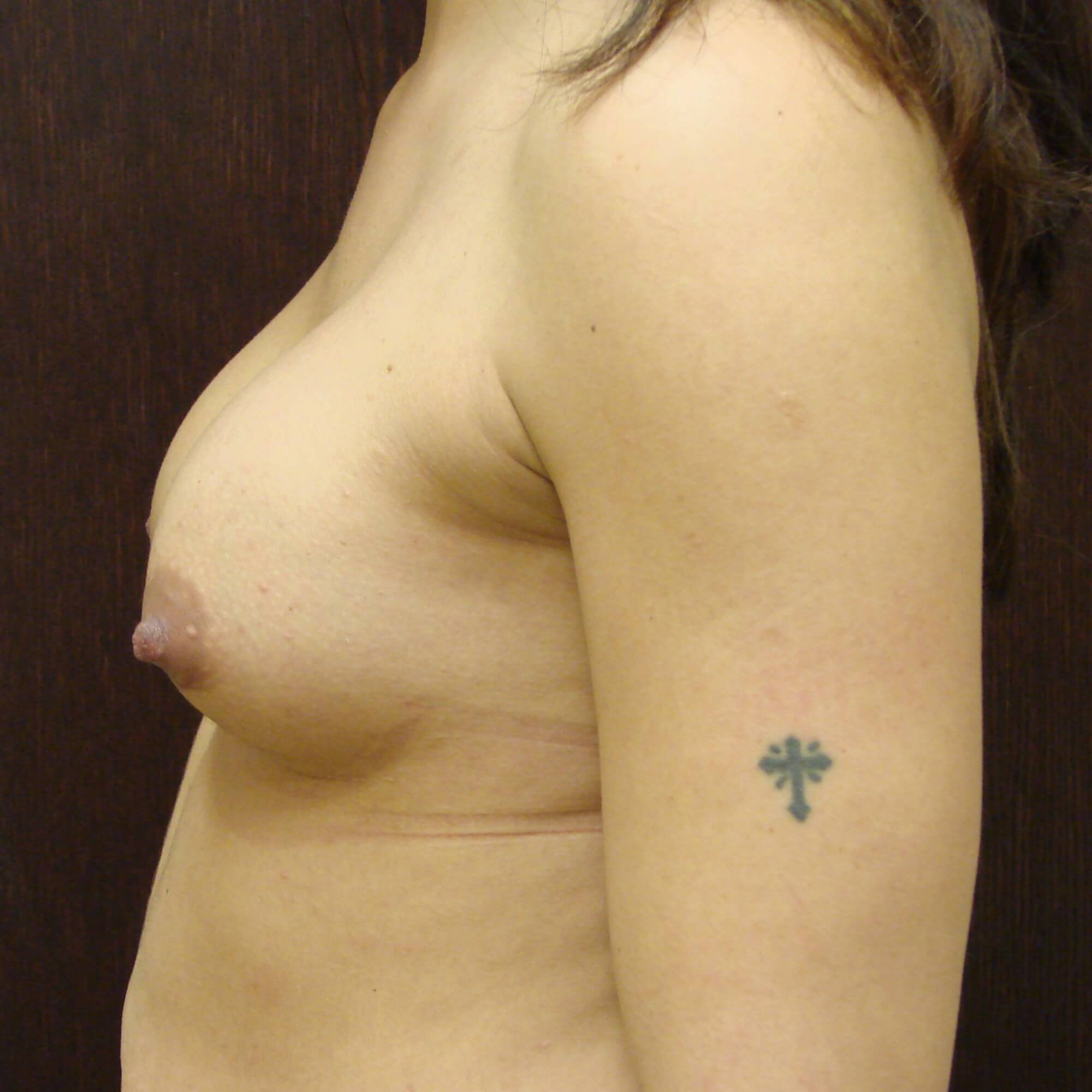 Breast implants 325cc