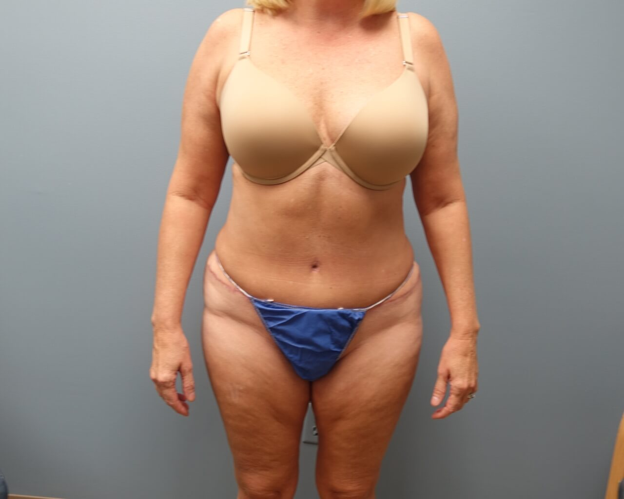 Before and After Liposuction and Tummy Tuck 1-month post operative