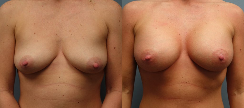 Before & After Silicone implants Right- 450CC Left 425CC Sub Muscular