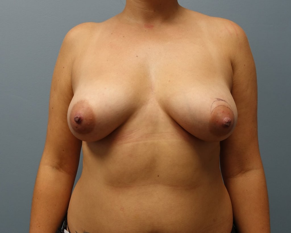 This patient is 28 y/o<br /> before and 6 weeks after breast aug 350 moderate plus gel submuscular<br /> and a crescent lift on left breast only.