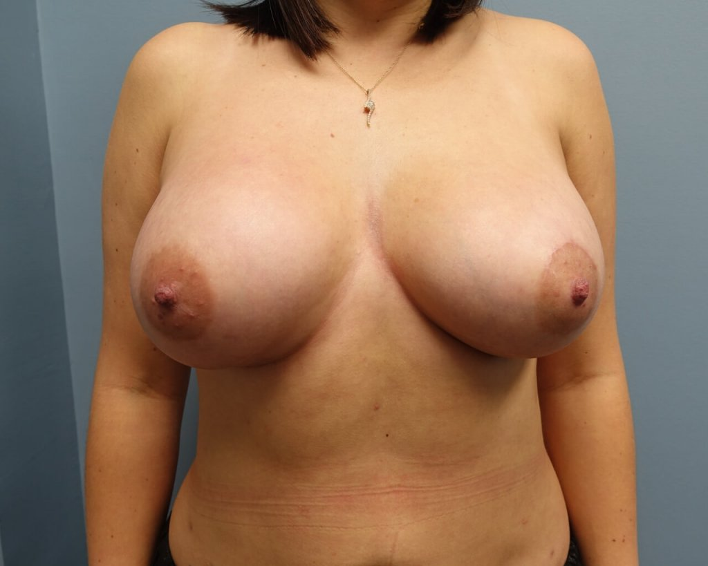 This patient is 28 years old  before and 6 weeks after breast aug 350 moderate plus gel submuscular and a crescent lift on left breast only.