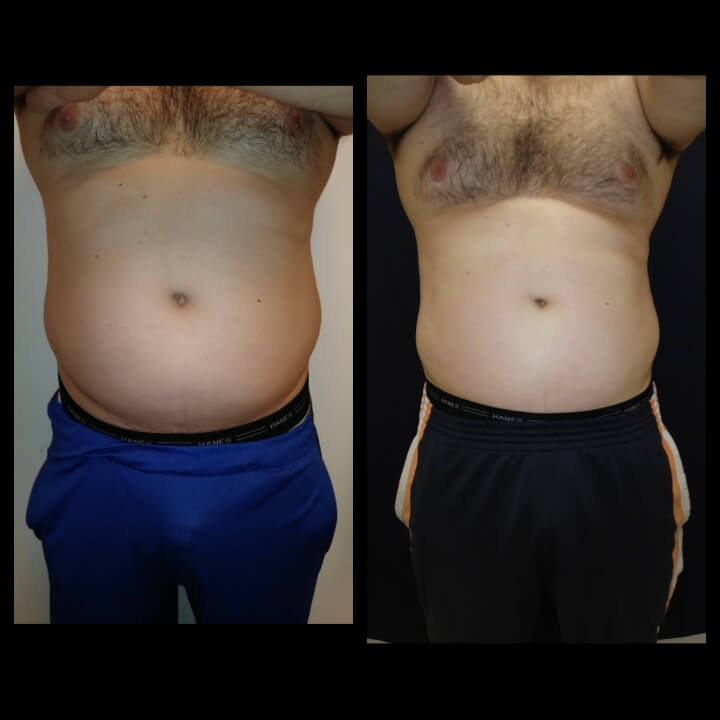 Before and after 2 Posh Body Slim Treatments Treatment Goal - Fat Reduction The patient lost 6 inches in two treatments and was able to pass the Tape Test to remain in the military.