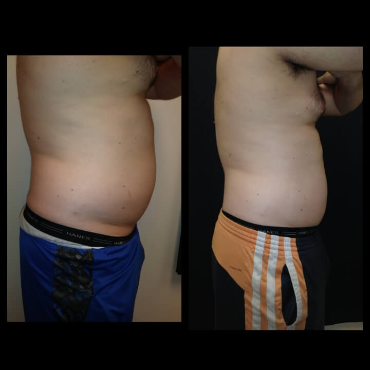 Before and after 2 Posh Body Slim Treatments. Patient lost 6 inches and was able to pass the military test.