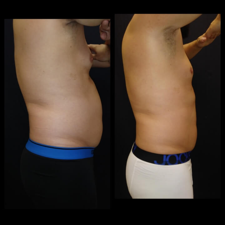 Before and after Posh Body Slim Treatments - Nonsurgical Body Contouring