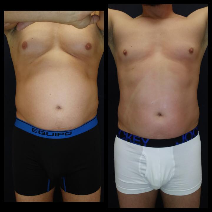 Before and after 1 Posh Body Slim Body Contouring Session -Treatment Goal Fat Reduction & Skin Tightening