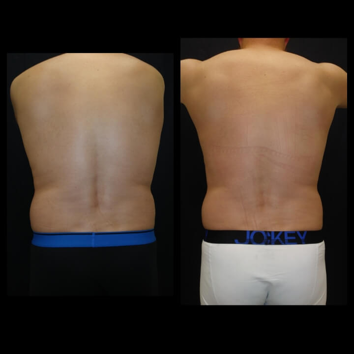 Before and after 1 Posh Body Slim Body Contouring Session - Treatment Goal Fat Reduction & Skin Tightening