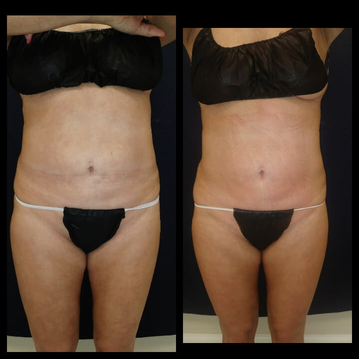 Before and after 2 Posh Body Slim Treatments - Treatment Goal Fat Reduction and Skin Tightening