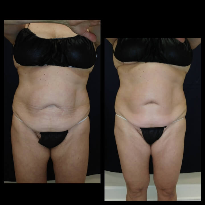 Before and After 2 Posh Body Slim Treatments - Treatment Goal Fat Reduction & Skin Tightening