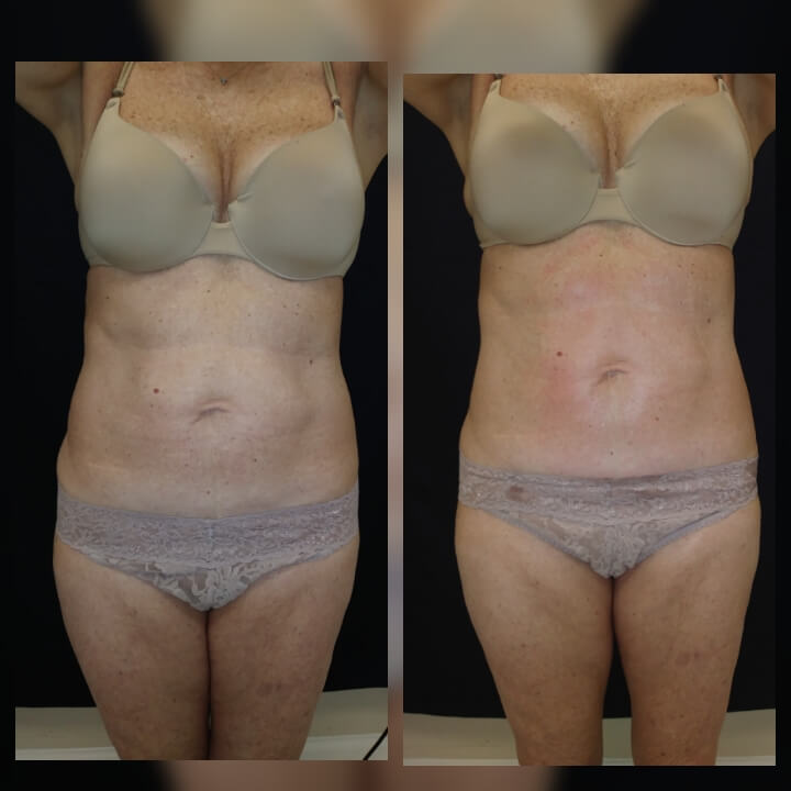 Before and After One Posh Body Slim Treatment - Treatment Goal Fat Reduction & Skin Tightening