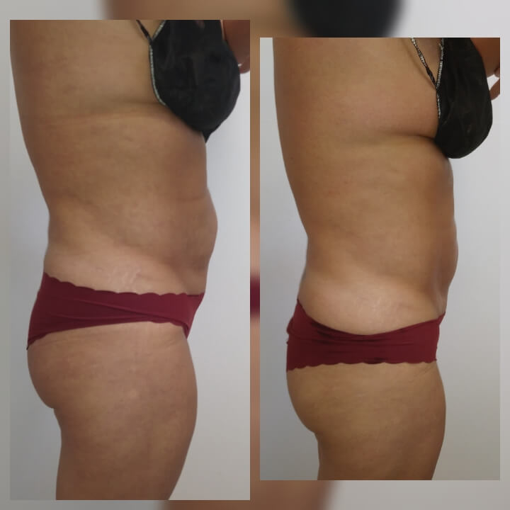 Before and after one Posh Body Slim Treatment for Body Sculpting and Fat Reduction