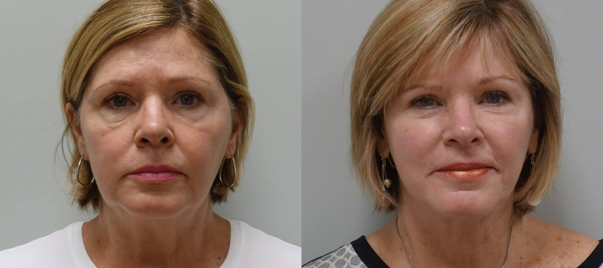 Before and After Upper and Lower Eyelid Lift - Facelift with Fat Grafts