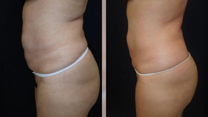 Before and after 2 Posh Body Slim Body Contouring Sessions - Treatment Goal Fat Reduction & Skin Tightening