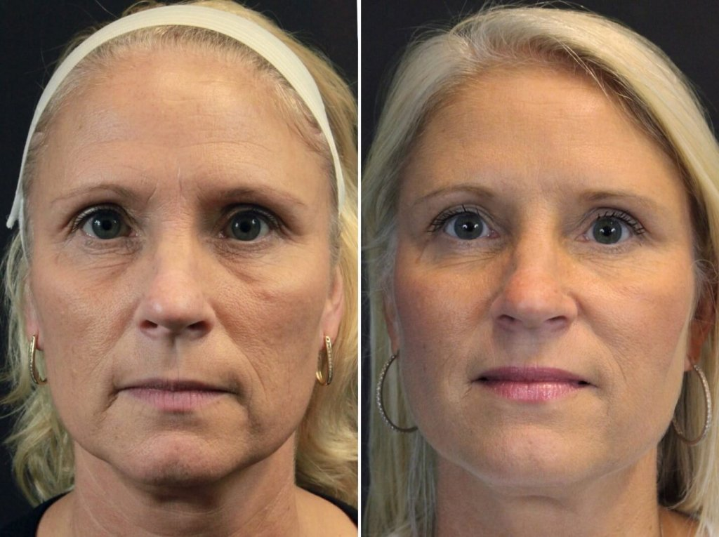 Silhouette Instalift Results- The Nonsurgical Facelift. Finger and Associates in Savannah, Georgia