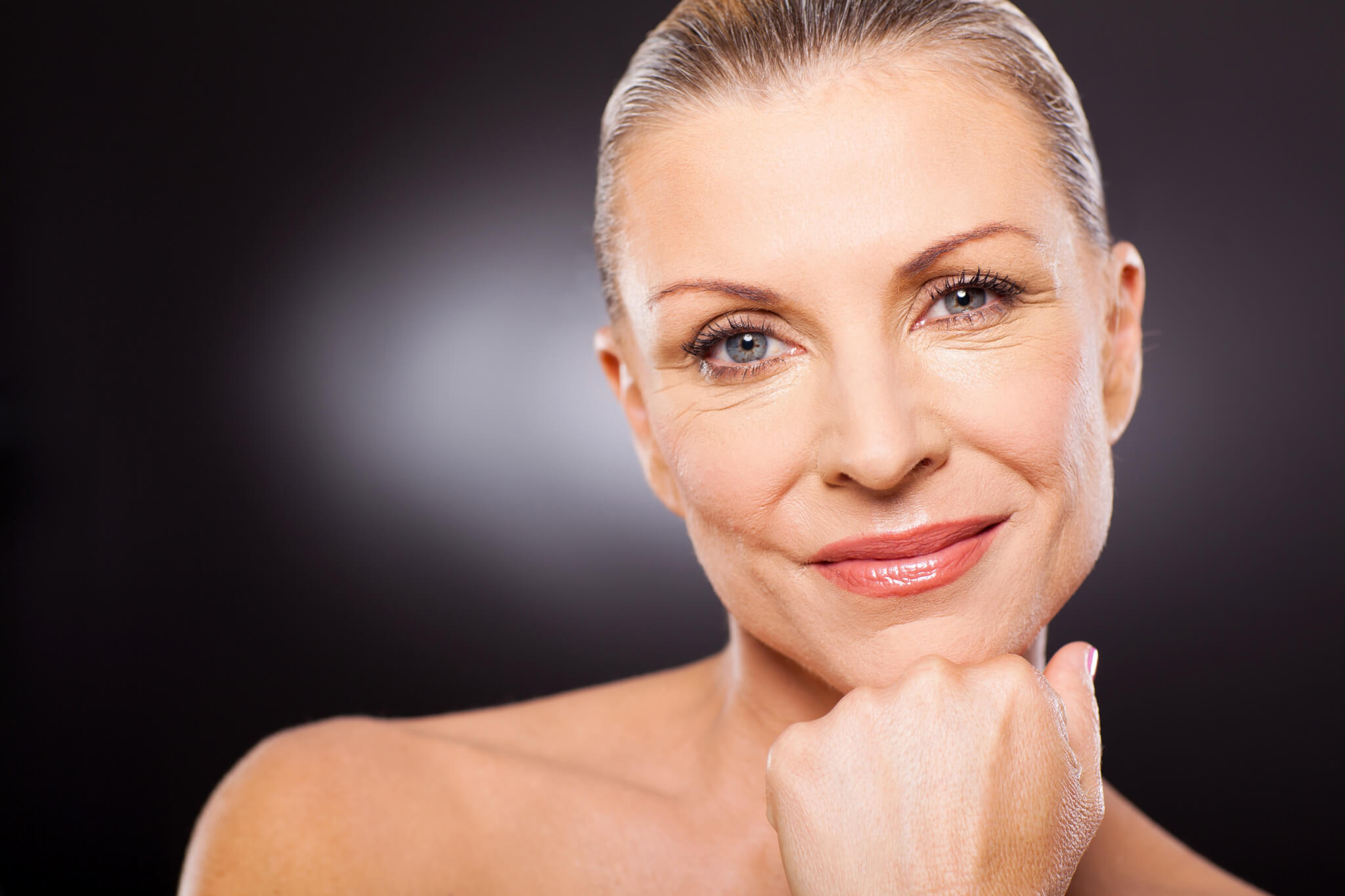 Bellafill and Pixel8 RF Microneedling can make a beautiful combination to look younger longer