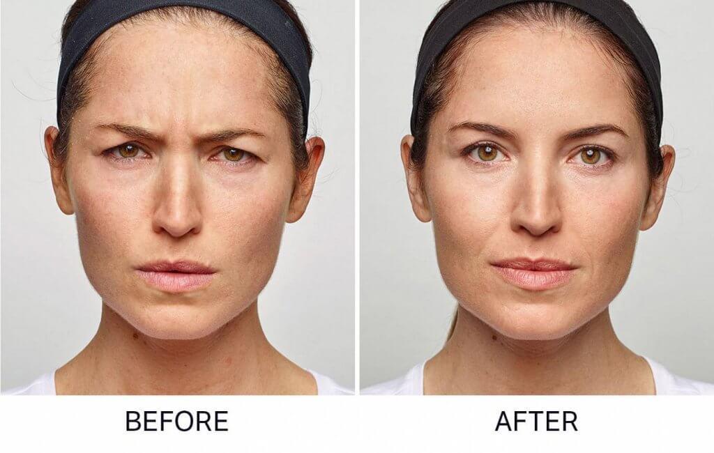 Botox versus Dysport you choose