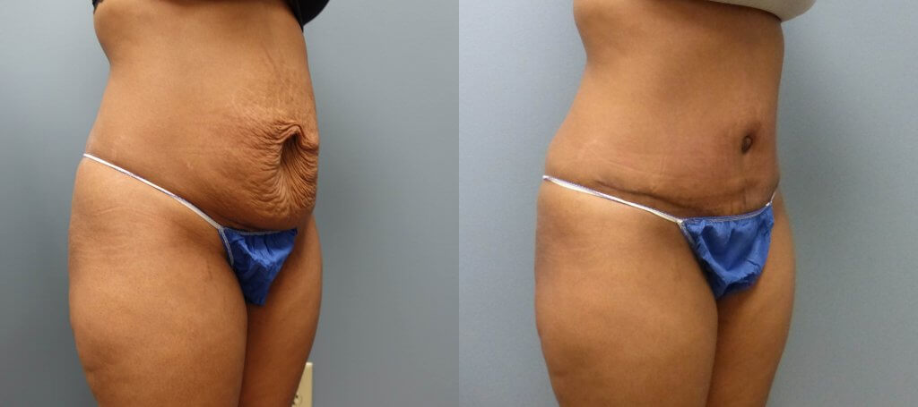 This patient had a Tummy Tuck without drains and Liposuction by Dr. E. Ronald Finger