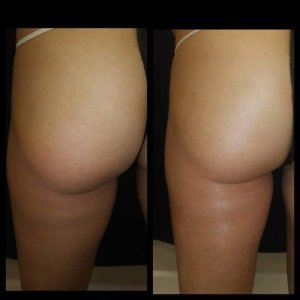 Posh body slim for lifting and toning the buttocks works by using RF technology without the ultrasonic cavitation.