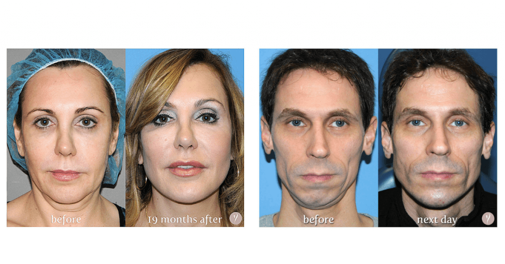 experience-the-latest-nonsurgical-facelift-the-y-lift-savannah-georgia-by-dr.-finger-