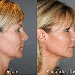 experience-the-latest-nonsurgical-facelift-the-y-lift-savannah-georgia-by-dr.-finger-2