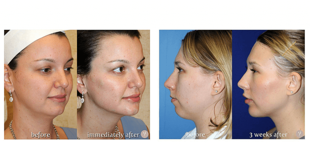 experience-the-latest-nonsurgical-facelift-the-y-lift-savannah-georgia-by-dr.-finger-1