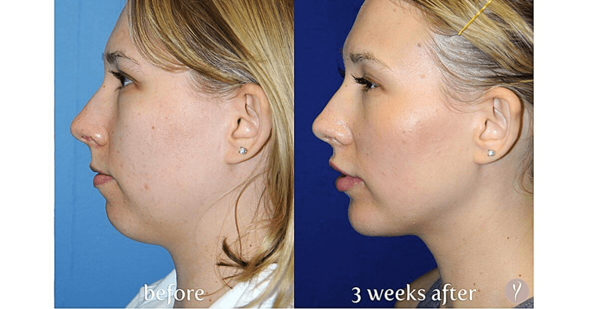 Experience The Latest Nonsurgical Facelift The Y Lift - Savannah, Georgia- by Dr. Finger