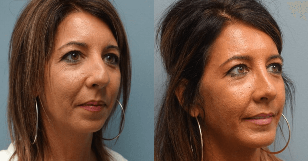 Before and After 4-months Rhinoplasty/Septoplasty & Chin Implant