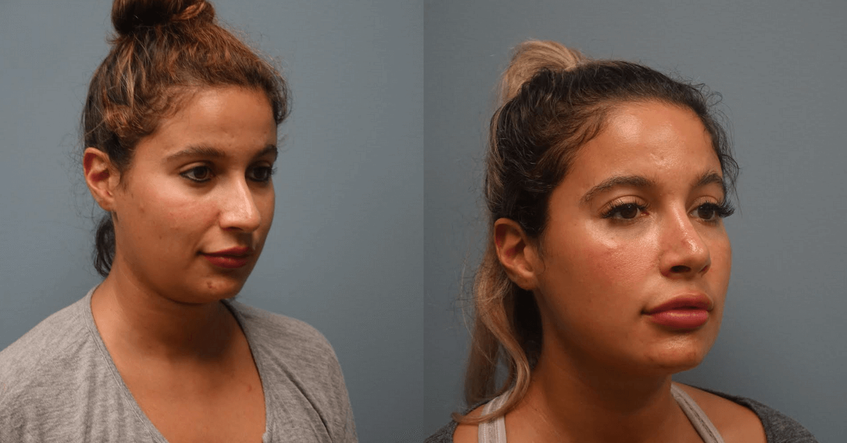 Before and After secondary Rhinoplasty