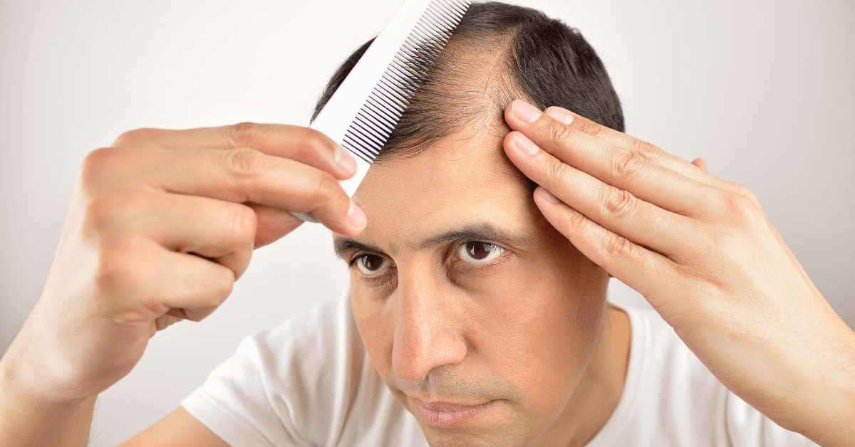 common-causes-of-hair-loss-by-dr.-finger_-hair-restoration-savannah-has-solutions-for-alopecia-4