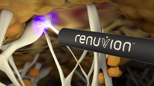 Renuvion uses Radiofrequency to tighten Skin without surgery. Image shows a 3 D Render of the Renuvion Plasma Pen penetrating the deeper layers of the skin without causing damage to outer layers.