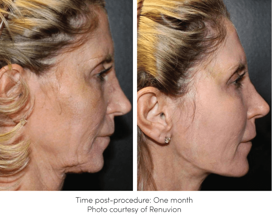 Renuvion for Skin-Tightening Before and After Picture of patient neck and lower face