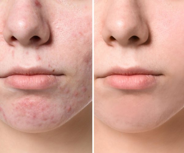 acne and acne scarring can be treated with the Pixel 8