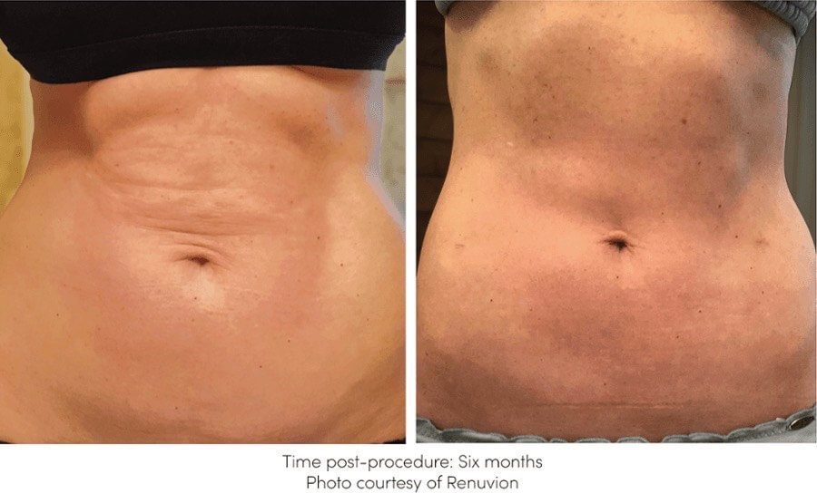 Before and After Renuvion Skin Tightening Treatment offered at Finger and Associates