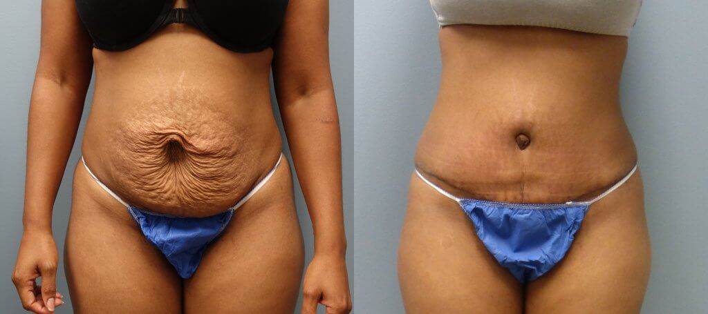Six weeks after an no-drain tummy tuck with rectus muscle repair- Tummy Tuck and Skin tightening treatments at Finger and Associates