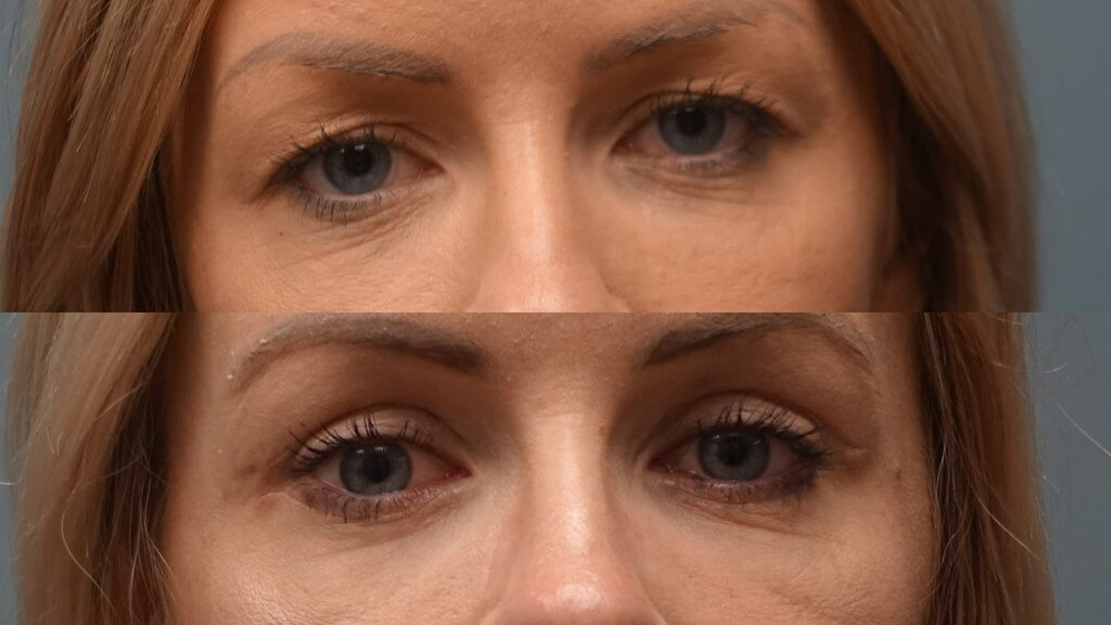 Eyelid Lift Surgery offered at Finger and Associates - Plastic Surgeon Dr. Finger offers Blepharoplasty in Savannah in Bluffton