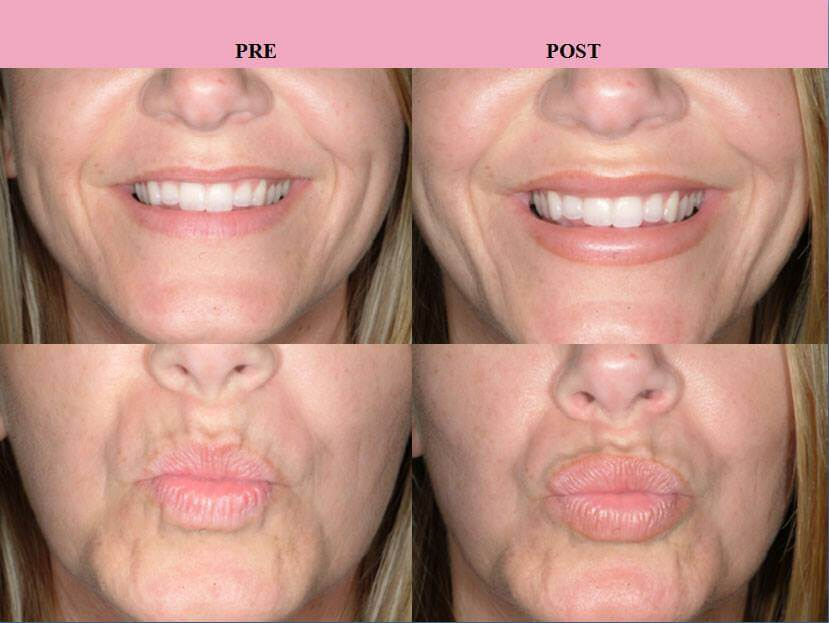 Before and After Juvederm Injections by Dr Finger in Savannah Georgia and Bluffton SC