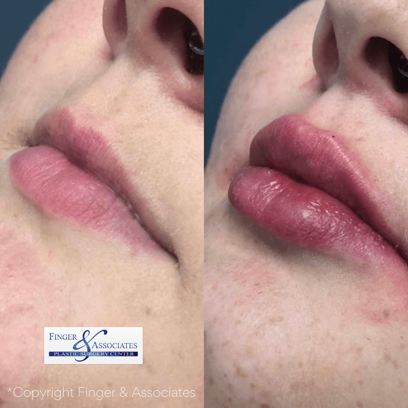 Before and After Restylane Kysse Lip Filler offered at FInger and Associates