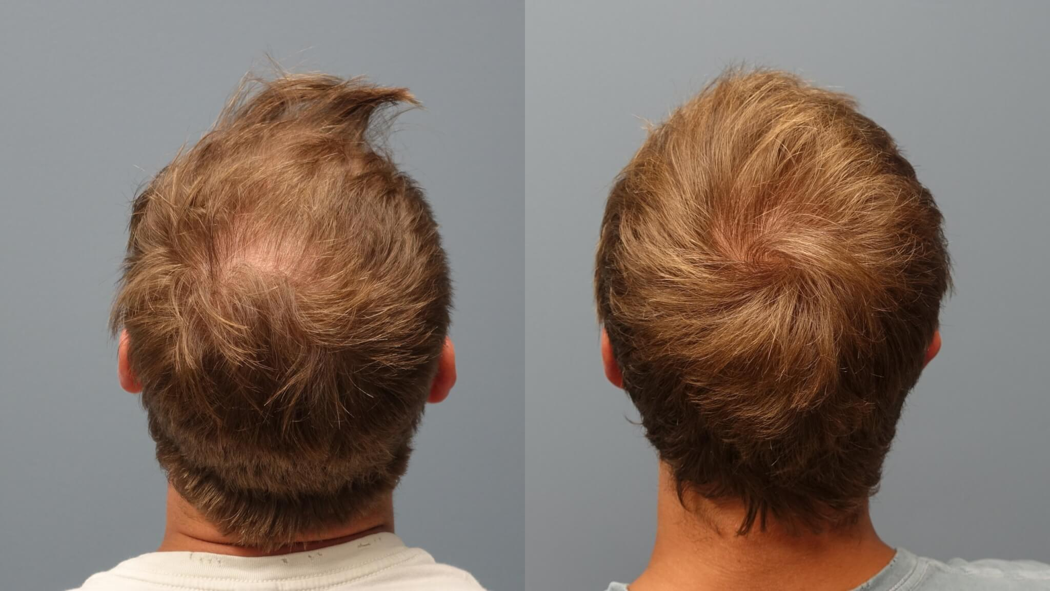 Before and after 1 year Neograft Hair Transplant 2500 Grafts