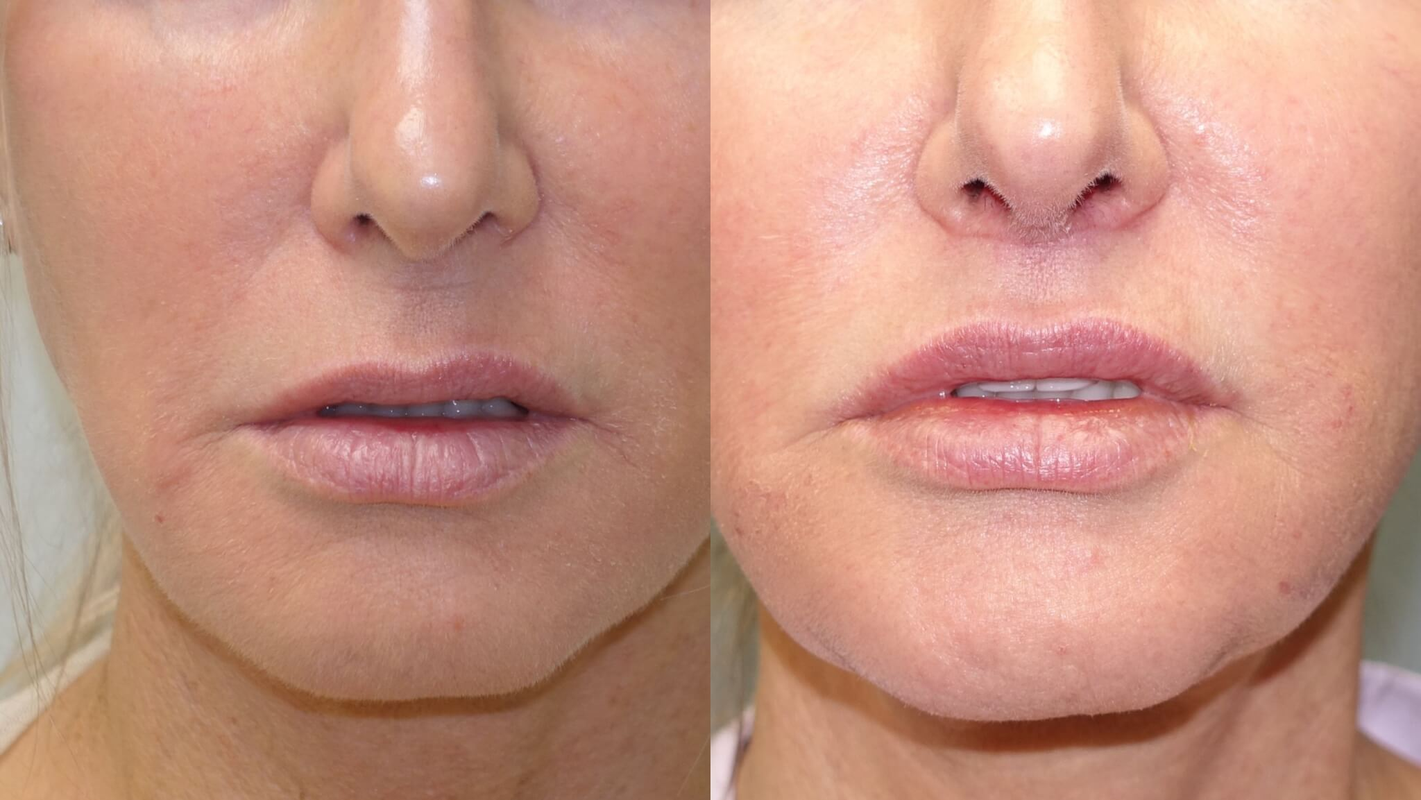 Before and After 2-months Lip Lift and by Dr. E. Ronald Finger