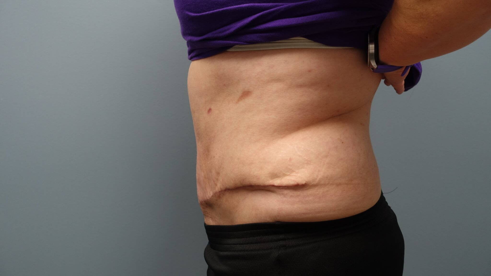 After 6 weeks of Tummy Tuck without Drains, Liposuction, and Muscle Repair - Scar will heal and blend within 12-months