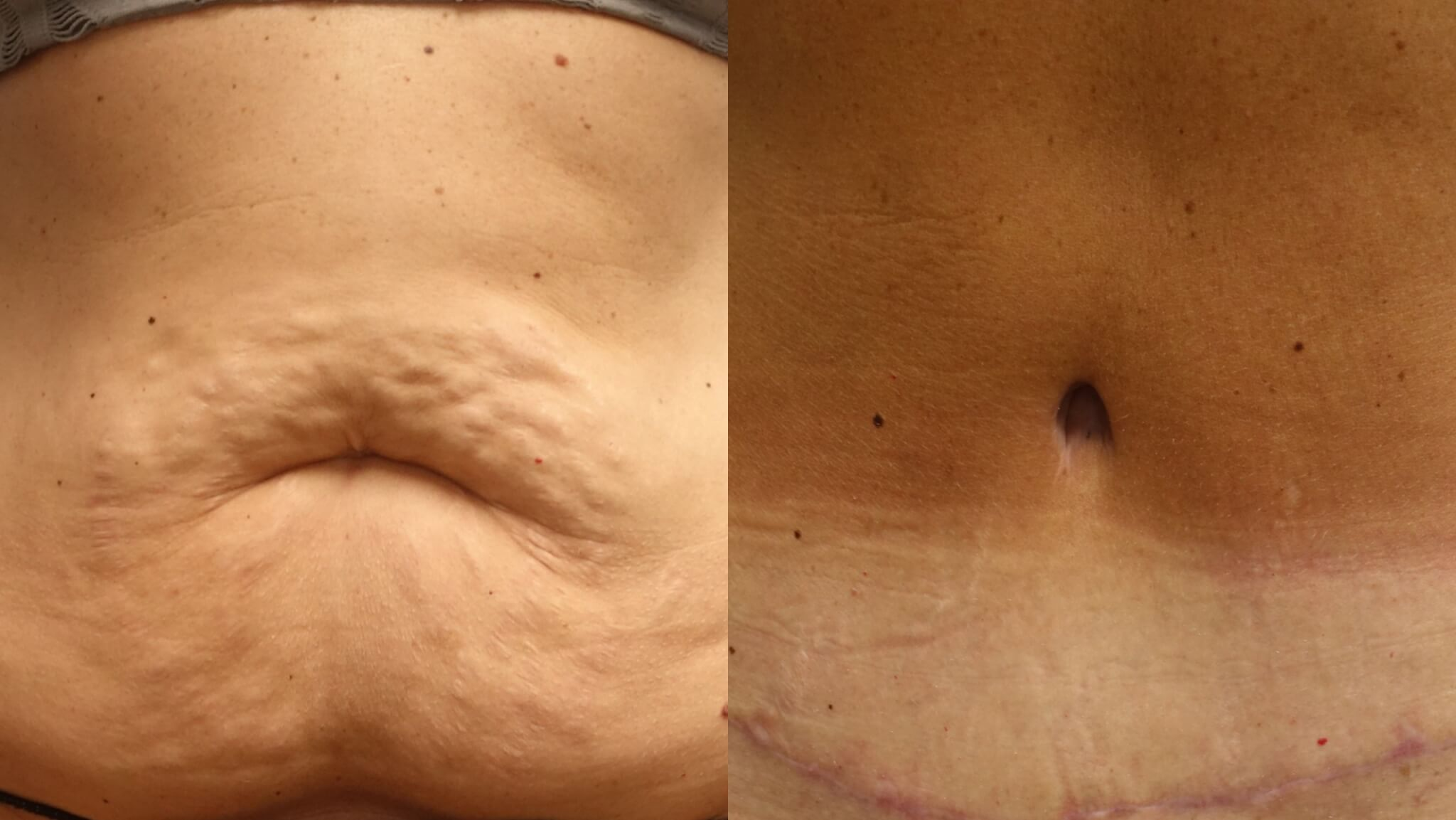 Beautiful Belly Button after Tummy Tuck by Dr. E. Ronald Finger