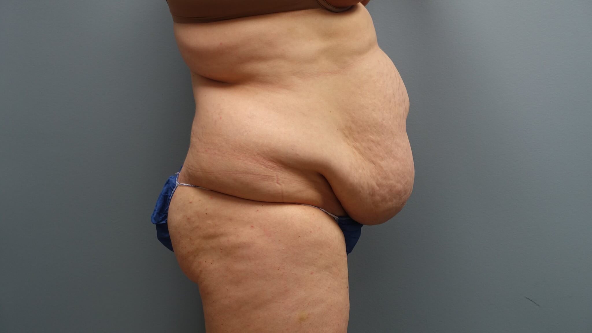 Before Tummy Tuck with Liposuction and Muscle Repair